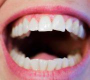 aparitia bacteriilor cavitatii bucale